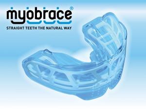 mybrace